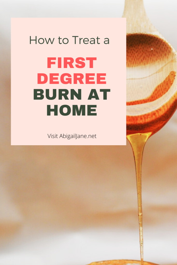 how to treat a first degree burn